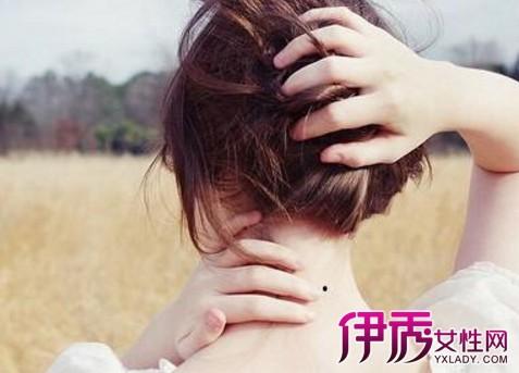 女人脖子右侧有痣怎么解 面相大师为你解答疑团图片