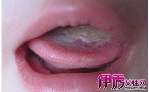舌苔微黄图片1