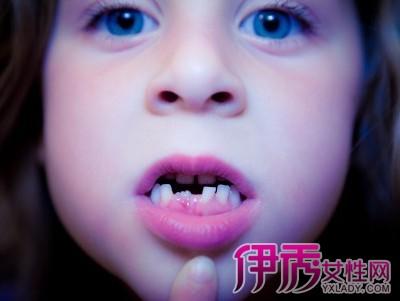 【儿童换牙顺序图】【图】儿童换牙顺序图知多少