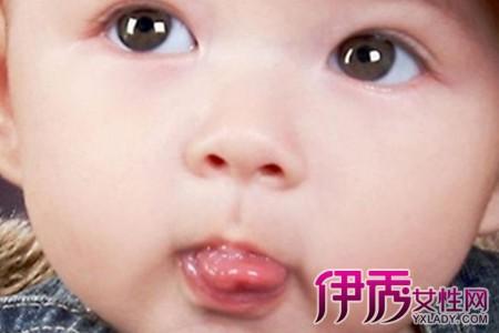 如果宝宝舌头上有溃疡怎么办 家长可采取的7种疗法