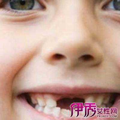 【六岁儿童换牙顺序图】【图】六岁儿童换牙顺序图