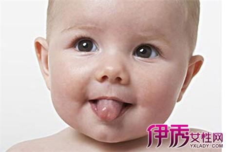 宝宝舌头溃疡图片大全展示 造成其的因素你知道吗