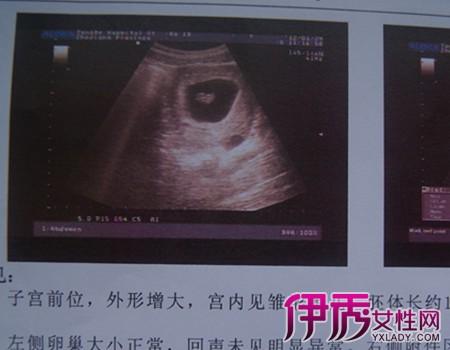 胎儿一个月的图片_【怀孕b超图片一个月】【图】揭秘怀孕b超图片一个月 9步教你 ...