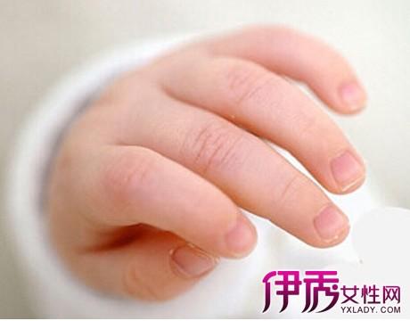 為什么寶寶手指甲會有白點圖片