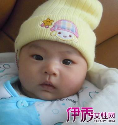【二个月宝宝咳嗽鼻塞怎么办】【图】二个月宝