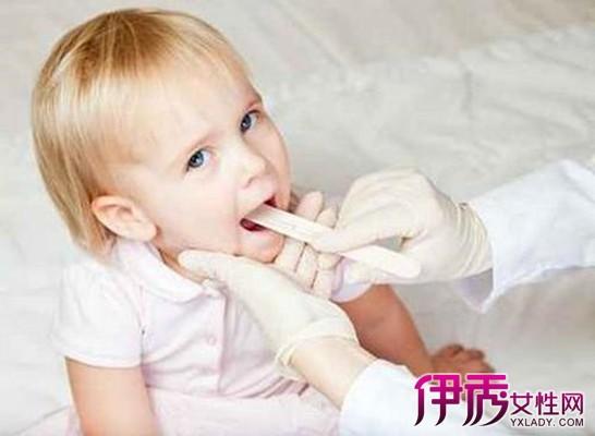 小孩舌头发白怎么办_【一个月小孩舌头发白怎么回事】【图】揭秘一