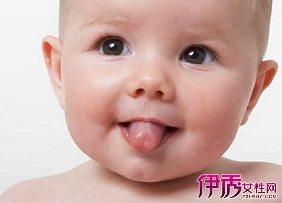 小孩舌头发白怎么办_