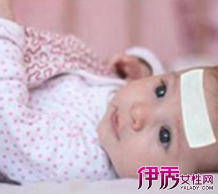 【一岁宝宝发烧怎么物理降温】【图】一岁宝宝