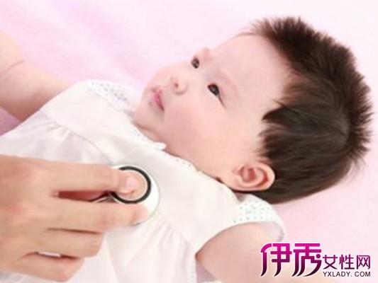 【一岁八个月宝宝发烧】【图】一岁八个月宝宝