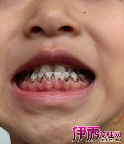 梦见牙齿碎一半留一半