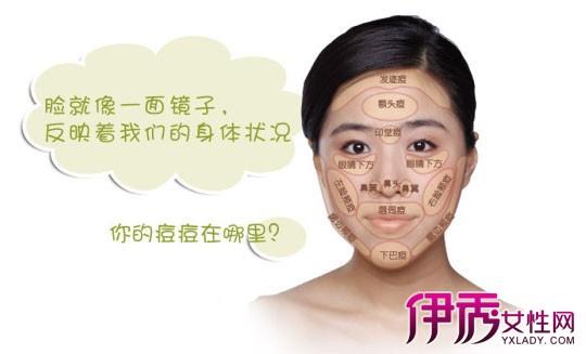 【图】脸上长痘痘是什么原因 最容易长痘习惯