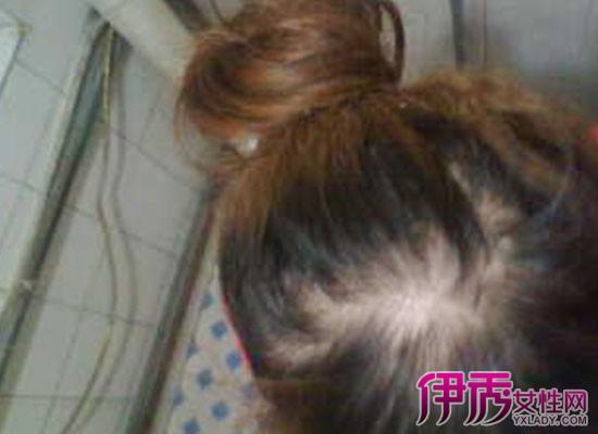 【图】头顶头发稀少怎么办 头顶头发稀少的原