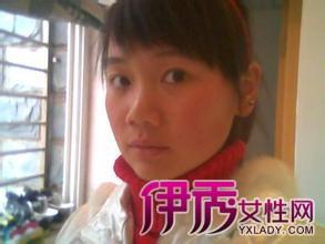 【图】冬季女性手脚冰凉脸发烫是怎么回事?