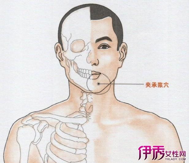 面神经麻痹分为中枢型和周围型。 中枢型:为核上组织(包括皮质、皮质脑干纤维、内囊、脑桥等)受损时引起,出现病灶对侧颜面下部肌肉麻痹。从上到下表现为鼻唇沟变浅,露齿时口角下垂(或称口角歪向病灶侧,即瘫痪面肌对侧),不能吹口哨和鼓腮等。多见于脑血管病变、脑肿瘤和脑炎等。 周围型:为面神经核或面神经受损时引起,出现病灶同侧全部面肌瘫痪,从上到下表现为不能皱额、皱眉、闭目、角膜反射消失,鼻唇沟变浅,不能露齿、鼓腮、吹口哨,口角下垂(或称口角歪向病灶对侧,即瘫痪面肌对侧)。多见于受寒、耳部或脑膜感染、神经纤维瘤引