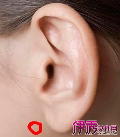耳前淋巴结肿大是什么原因造成 几个有效的缓解方法