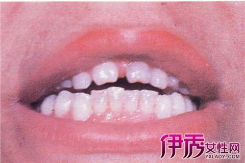【女梅毒早期症状图片】【图】女梅毒早期症状