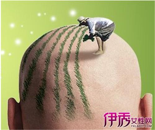 【种植头发的危害】【图】种植头发的危害有哪