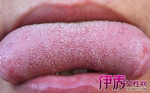 口腔上颚尖锐湿疣_求助上颚起了好多白色条的凸起是不是尖锐湿