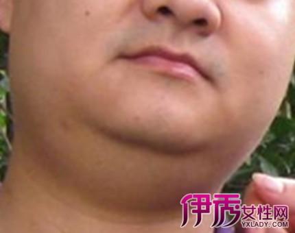 揭秘下巴淋巴结肿大图片 盘点5个食疗缓解方法