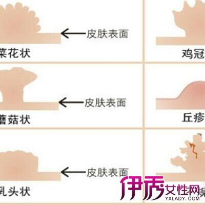 【女假性尖锐湿疣图片】【图】展示女假性尖锐