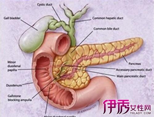 【急性重症胰腺炎】【图】急性重症胰腺炎的症状