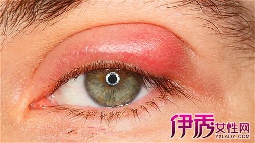 【上眼皮红肿痒是怎么回事】【图】上眼皮红肿痒是呢