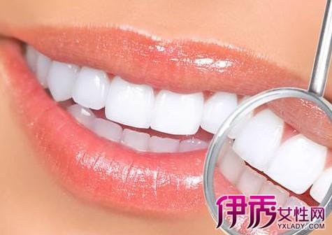 怎样让牙齿快速变白 6个方法让你明眸皓齿不是梦