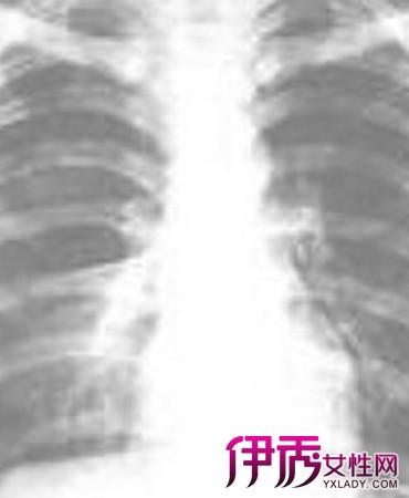 【气胸手术后注意事项】【图】盘点气胸手术后注意