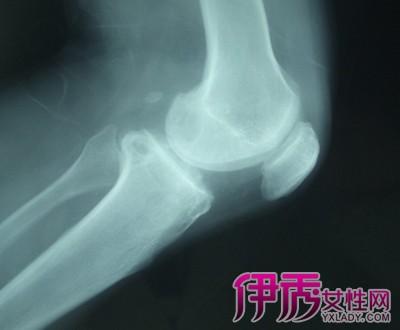 【图】膝关节骨质增生偏方 详解4种有效治疗偏方
