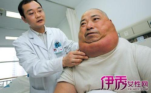 【脂肪瘤怎么去除小窍门】【图】脂肪瘤怎么去