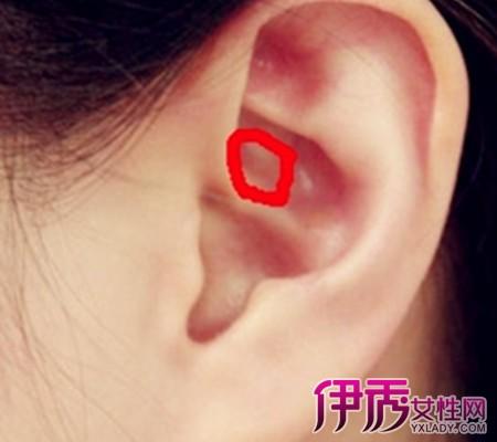 【耳朵里面长了个痘痘】【图】耳朵里面长了个