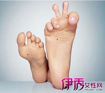 【左脚大拇指麻木是什么原因】【图】左脚大拇指麻木