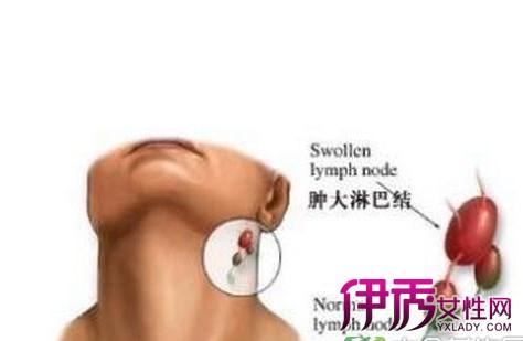 耳朵下方有肿块怎么办 该如何预防和治疗