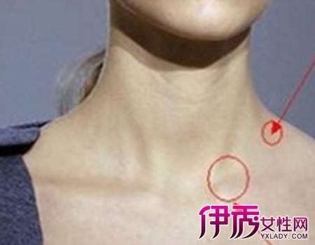 颈淋巴结核是什么病 有什么临床表现