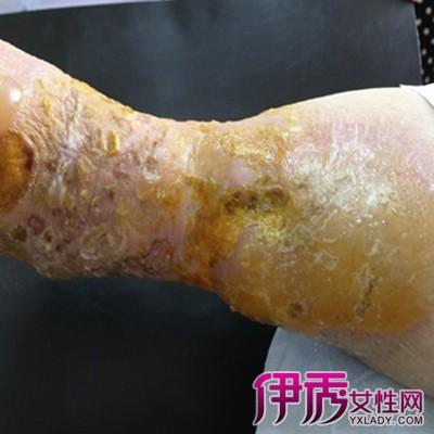男性霉菌感染症状_男性霉菌感染无症状