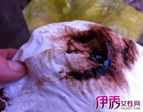 月经影院_月经期排出肉块状物图片_来月经排出很大坨肉皮