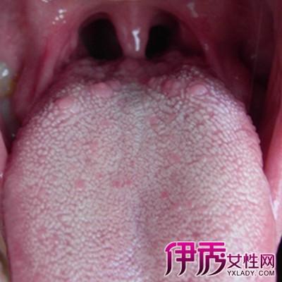 口腔尖锐湿疣舌底_