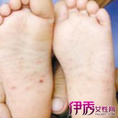 【轻型手足口病症状】【图】轻型手足口病症状曝光