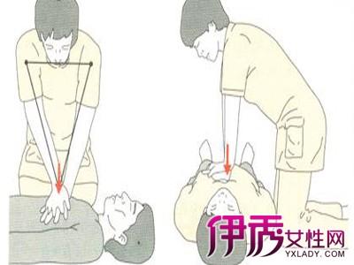 【心肺复苏操作流程】【图】2015国际心肺复苏操作
