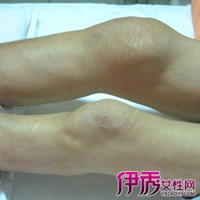 【膝盖骨刺的治疗偏方】【图】膝盖骨刺的治疗