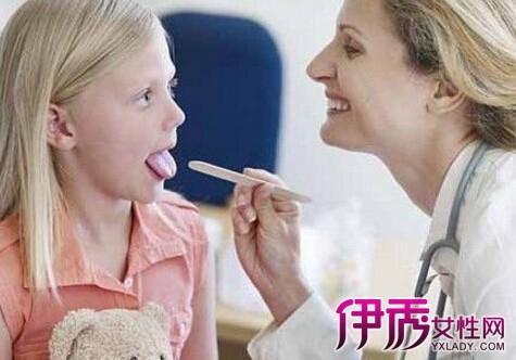【急性咽炎的症状和最佳疗法】【图】急性咽炎