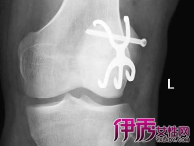【图】髌骨粉碎性骨折折术后功能锻炼