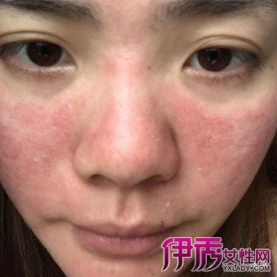 脸部皮肤薄怎么办_脸部皮肤过敏症吃什么药 图片合集