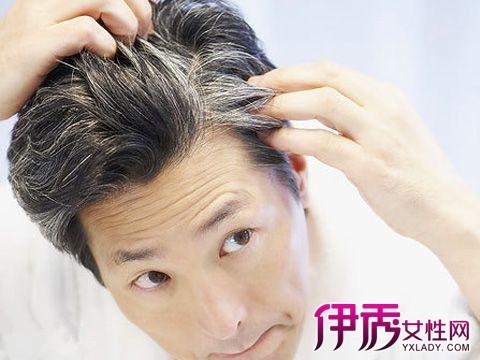 为什么年轻人会长白头发 导致年轻人长白头发的三大原因