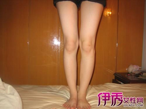 【图】你知道大腿外侧疼痛是怎么回事吗