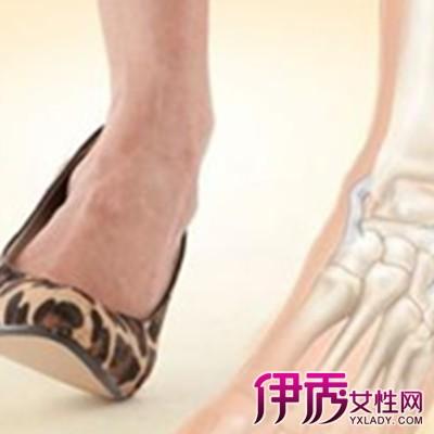 脚踝内侧疼是怎么回事 4个阶段让你的脚踝迅速恢复
