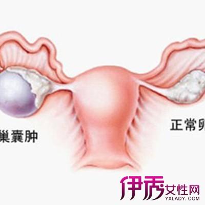 右侧卵巢囊肿严重吗 吃药能治好吗图片