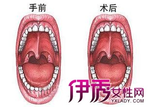 【图】割扁桃体的危害 会对喉咙造成什么影响