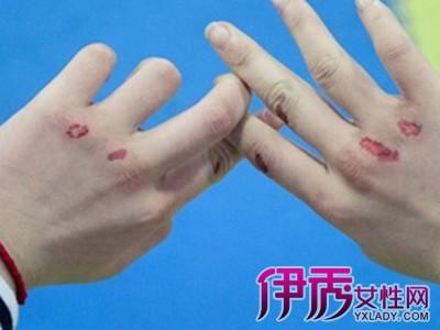 【手出血图片】【图】手出血图片有哪些?图片