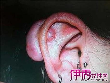 打了耳洞后耳朵里有个硬块怎么办 3点帮你轻松去除硬块